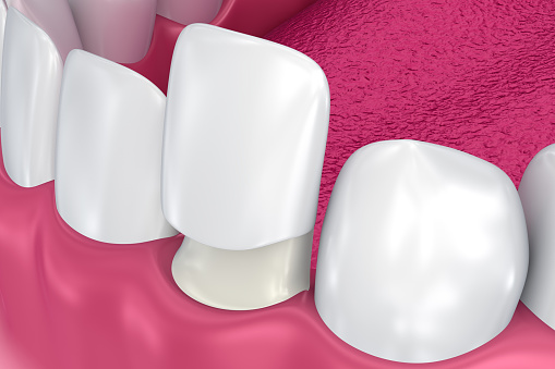 Porcelain Veneers at Martin Periodontics