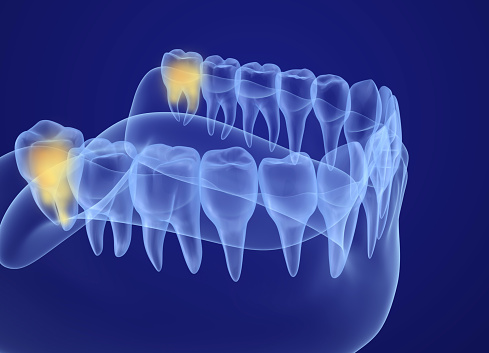 Wisdom teeth removal at Martin Periodontics