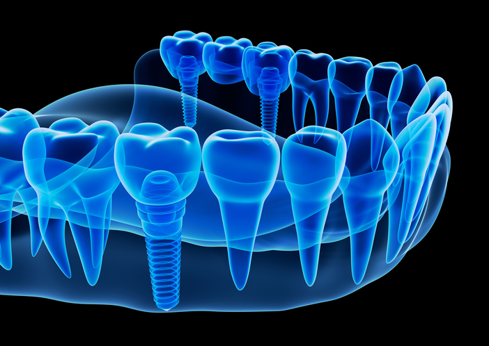 Replacing multiple teeth with dental implantsMartin Periodontics
